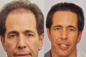 hair transplant in Islamabad, Rawalpindi & Pakistan