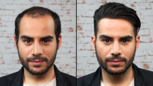 hair transplant results in Islamabad Pakistan