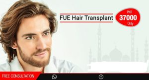 Hair Transplant in Rawalpindi, Islamabad & Pakistan