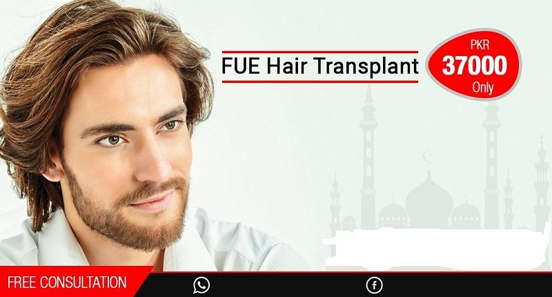 Hair Transplant in Rawalpindi, Islamabad & Pakistan