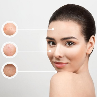 Acne Problem And Best Solution in Islamabad Pakistan Cost & Deal