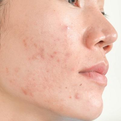 Acne Scars Treatment in Islamabad, Rawalpindi & Pakistan Cost & Deal