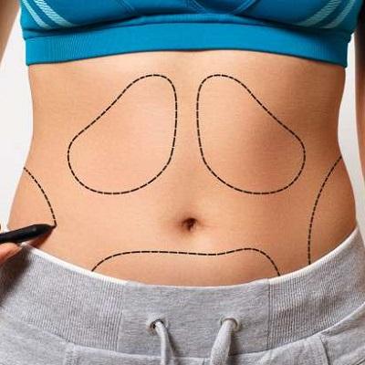 Best Abdominoplasty in Islamabad, Rawalpindi Pakistan Tummy Tuck Cost