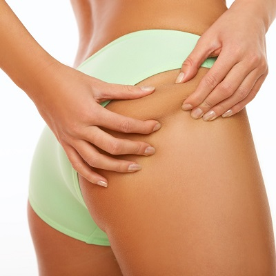 Cellulite Removal Treatment in Islamabad Pakistan - Glamorous Clinic