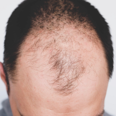 How Baldness Is Harmful To Your Emotions