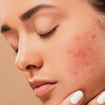 Natural Ways To Get Rid of Pimples Fast in Islamabad Pakistan Cost