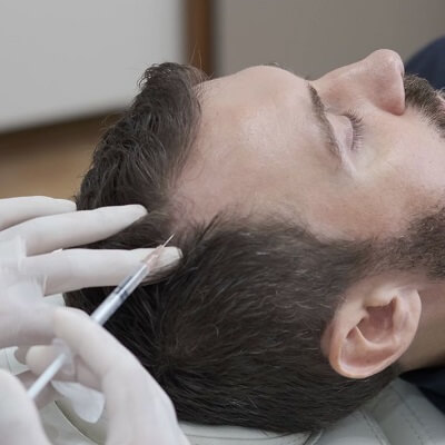 PRP Hair Treatment Cost in Islamabad Pakistan PRP Price in Pakistan