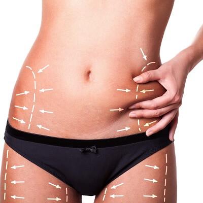 Advantages and Procedure of Liposuction Surgery Islamabad Pakistan
