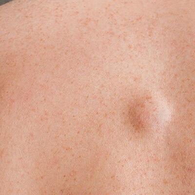 Best Lipoma Treatment in Islamabad, Rawalpindi & Pakistan Lipoma Cost