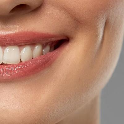 Dimple Creation in Islamabad, Rawalpindi Pakistan Dimpleplasty Cost