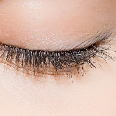 Eyelid Surgery in Islamabad, Rawalpindi & Pakistan Blepharoplasty Cost