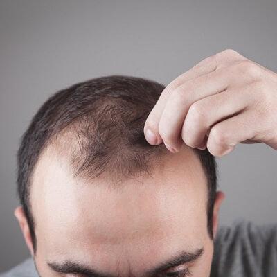 FUE Hair Transplant in Islamabad, Rawalpindi & Pakistan FUE Cost