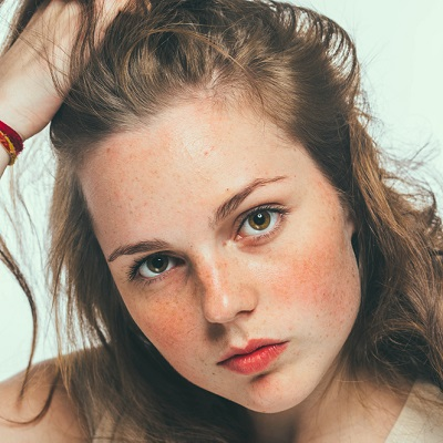 Freckles & Blemishes Treatment Islamabad, Rawalpindi Pakistan Cost