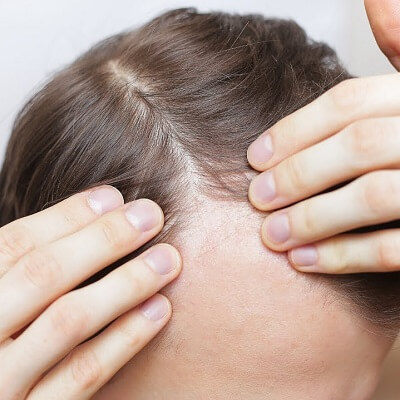 How To Say Goodbye For Baldness For Men & Women in Islamabad Pakistan