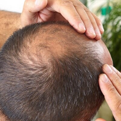 Is There Any Role Of Medicines In Baldness?