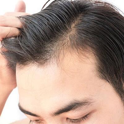 Mesotherapy for Hair Loss in Islamabad, Rawalpindi & Pakistan Cost
