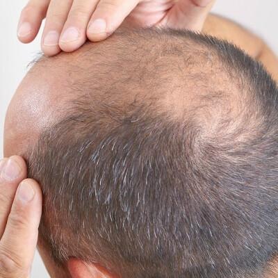 Stem Cell Hair Transplant in Islamabad, Rawalpindi & Pakistan Cost